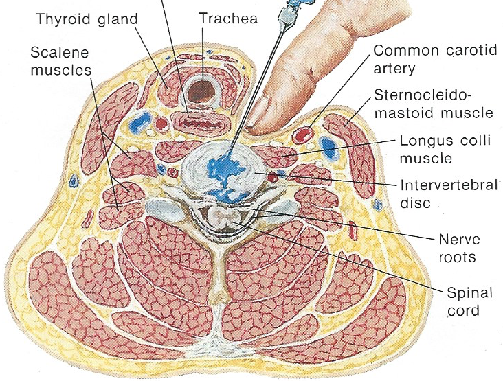 Fibromyalgia Syndrome Is Of Intervertebral Disc Origin Fibromyalgia001
